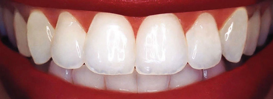 Best dental bonding in hollywood fl karen gordon dmd composite resin is a white tooth colored material that can be shaded to match your teeth this material is applied to your teeth and sculpted to cover or solutioingenieria Gallery