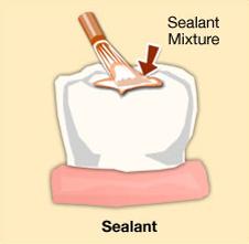 Protective Sealants