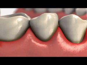 preventing gum disease